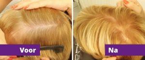 grijs-haar-verven-voor-en-na